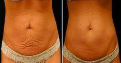 Dopo aver perso qualche chilo di troppo, è molto probabile che la pelle sia…