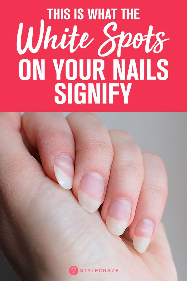 Do You Have White Spots Half Moon On Your Nails Here S What They Mean Moons On Fingernails You Nailed It Nails