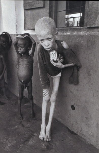 Biafra  Yet, slowly reporters and photographers arrived, making Biafra the world's first media famine. But the world could only sit and wait as more than one million people perished, mostly from starvation. With the pictures such as that of a hauntingly emaciated albino boy, Don McCullin introduced the world to the sight of children with stick-thin limbs and grotesquely distended stomachs, characteristic of protein deficiency — images which are to become all too tragically familiar in…