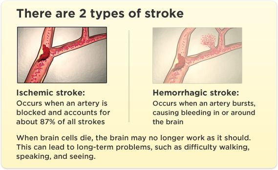 There are 2 types of stroke | Stroke Awareness