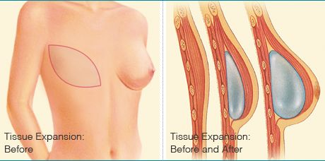 Breast Reduction surgery can improve the size and shape of breasts. It is also referred as Reduction Mammoplasty. By choosing a member of the American Society of Plastic Surgeons. you can be assured that you are choosing a qualified, highly trained plastic surgeon who is board certified.  http://www.apcsurgery.com.au/surgeon.php