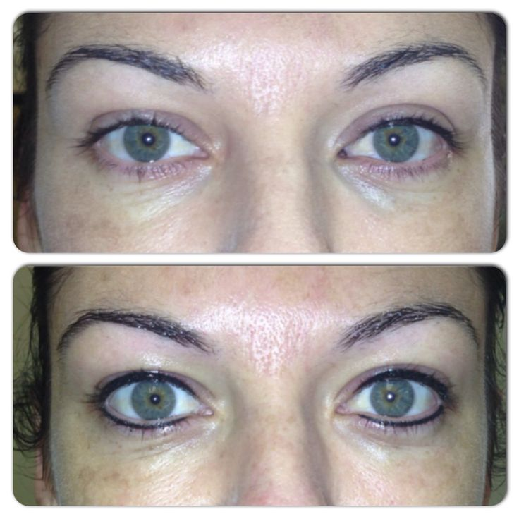 Permanent make-up, before and directly after Doing Eyeliners: