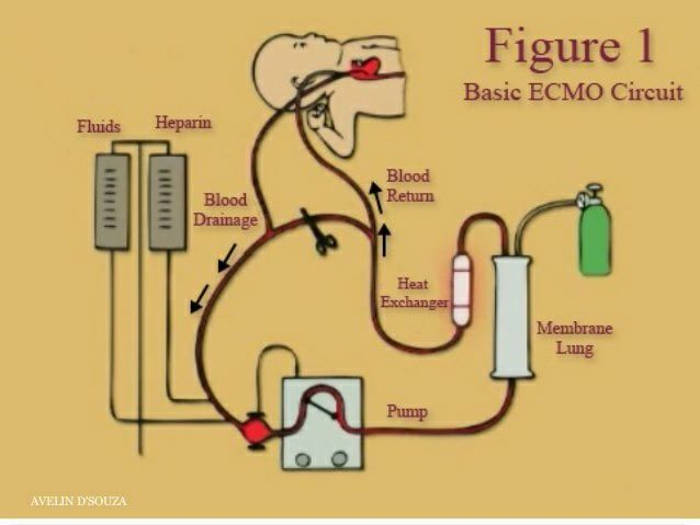 ECMO- An Extracorporeal Membrane Oxygenation (ECMO) machine is a medical device that performs this task. In fact, it is very similar to a heart-lung machine that is used to continue the supply of blood and oxygen while the heart is stopped, such as during open heart surgery. ECMO therapy, however, is intended for patients whose heart and lungs cannot normally function on their own.