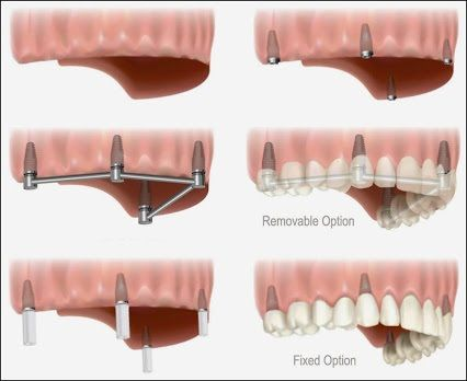 Dental Implants for Multiple Missing Teeth. When multiple teeth are missing or failing, replacing them with dental implant treatment options may include: • A removable partial denture • A multiple tooth supported fixed bridge • An implant-supported bridge #Implants #DentalImplants #Dentalcare #Teeth #CosmeticDentistry