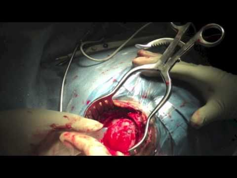 Subarachnoid Hemorrhage - PEV - YouTube