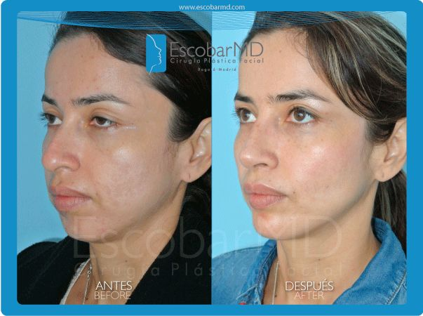 Antes después  rinoplastia mentoplastia bichectomía Bogotá, Colombia www.escobarmd.com / Before and after Rhinoplasty, mentoplasty and cheeks surgery (buccal fat removal) in Bogota, Colombia http://www.escobarmd.com/en/mentoplasty-or-chin-surgery-in-colombia.html
