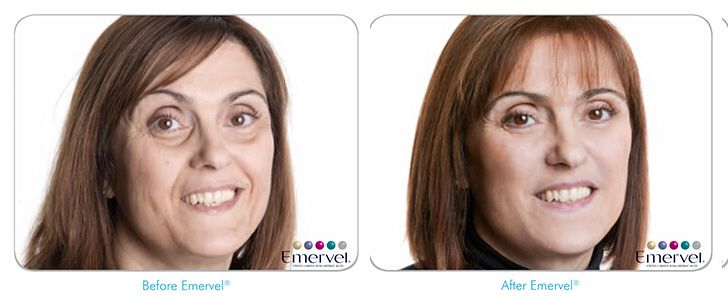 This patient's concern was her eyes, they were hollowing, giving a dark and sallow appearance to her eyes.  Under eye fillers have been used to replenish the loss of volume under the eye, giving her a natural, younger appearance.