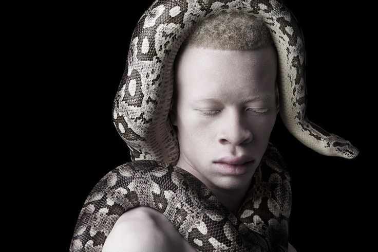 Stunning Photos Of Models With Albinism Capture The Beauty In Breaking Convention
