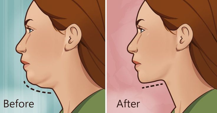 These 5 exercises can help get rid of a stubborn double chin