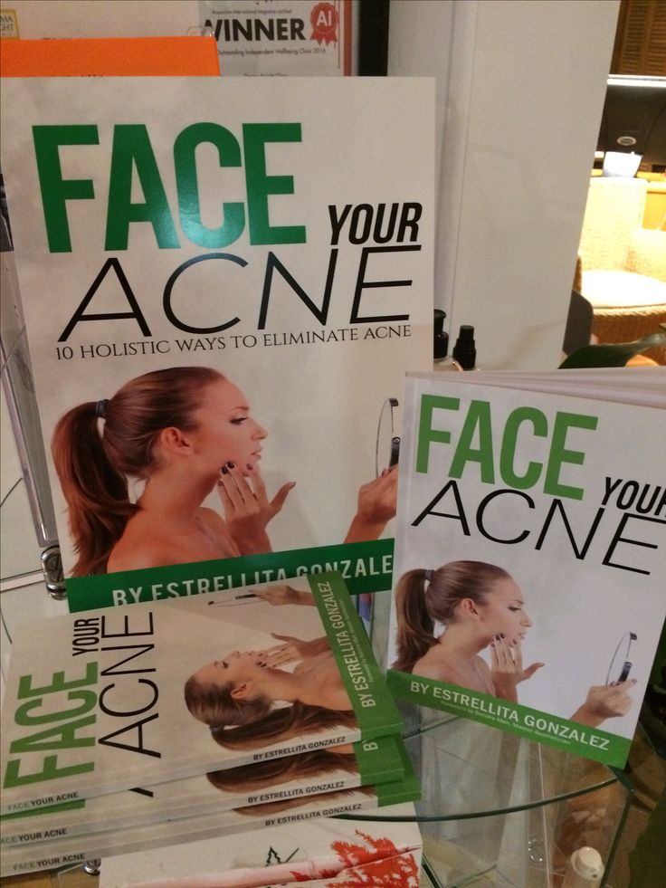 "My book ""Face Your Acne"" is available on Amazon and Kindle!"