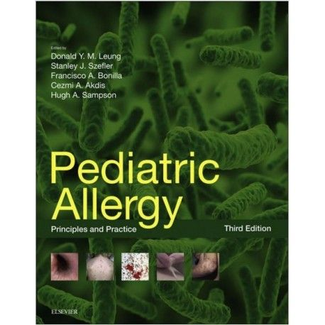 Pediatric Allergy: Principles and Practice Kindle Edition