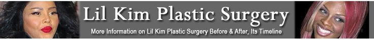 As the years pass, Korean plastic surgery has been common as it comes to be an affordable operation open to all. It has become cheaper too which has put it on the main stream. And as Korean doctors practice this operation more and more, plastic surgery has become better and even safer.