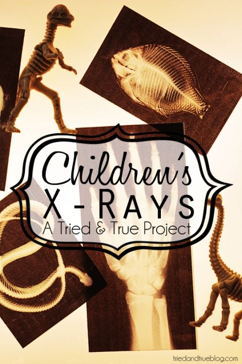 Explore bones and bodies with your kids! - Free printable x-rays from Tried & True