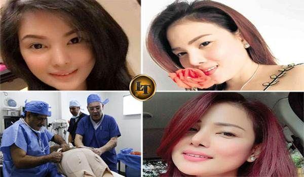Penting Bagikan ! Masih Kurang Cantik 6 Fakta Wanita Berani Oplas dan Sedot Lemak Yang Berujung Kematian