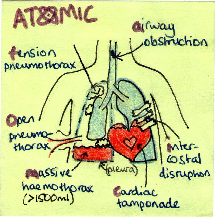 post-it-note-medicine:  ATOMIC - an acronym for remembering the six causes of breathing problems that should be noted on the primary survey in a trauma patient. A. airway obstructionT. tension pneumothoraxO. open pneumothoraxM. massive haemothoraxI. intercostal disruption - i.e. flail chest where a set of ribs have detached and are floating free in the chest. An indicator of severe chest trauma. C. cardiac tamponade The fluffy things in the collapsed lung are clouds. It's meant to signify…