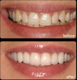 Looking for a brighter, whiter smile? Dental #Porcelain #Veneers Painlessly & Quick Reshape & Whiten Your Smile. Click here http://dentista-em-santos-gonzaga.com.br/facetas-dentarias-laminas-de-porcelana-e-lentes-de-contato-de-ceramica-porcelana/