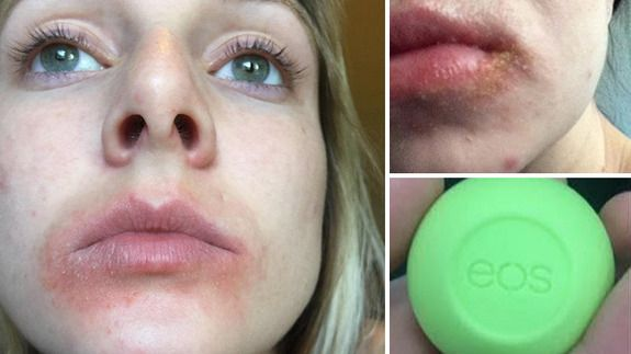 Woman sues EOS lip balm for allegedly causing painful blisters