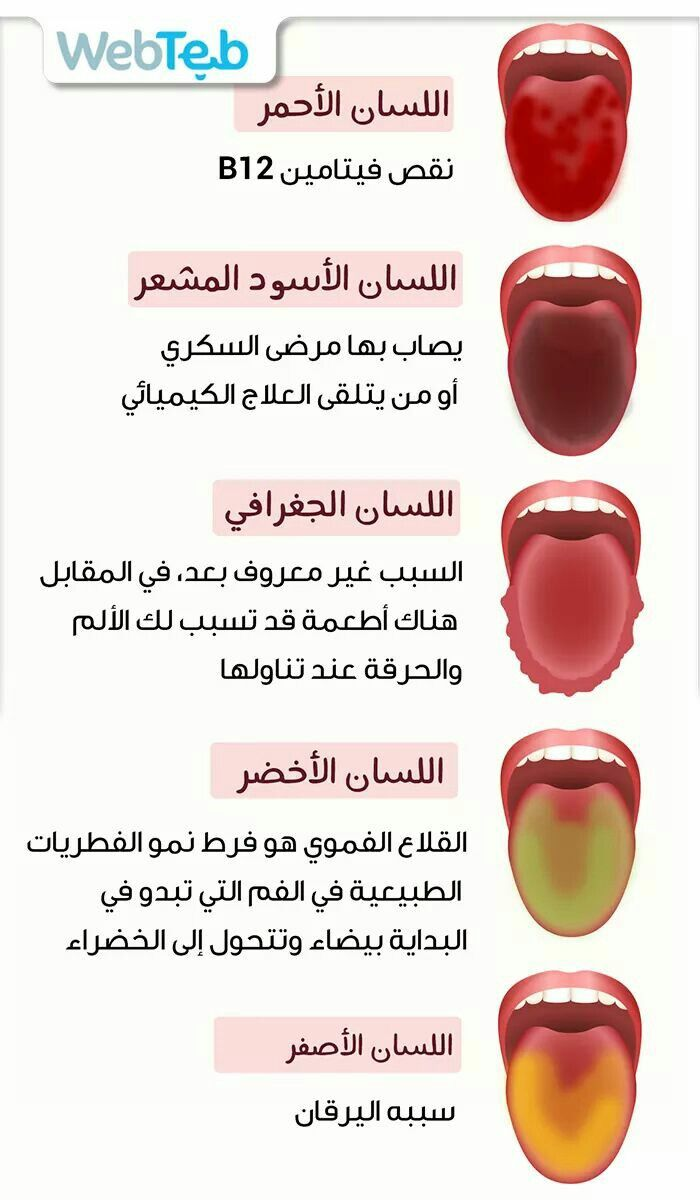 علام يدل لون اللسان Health B12 Losi