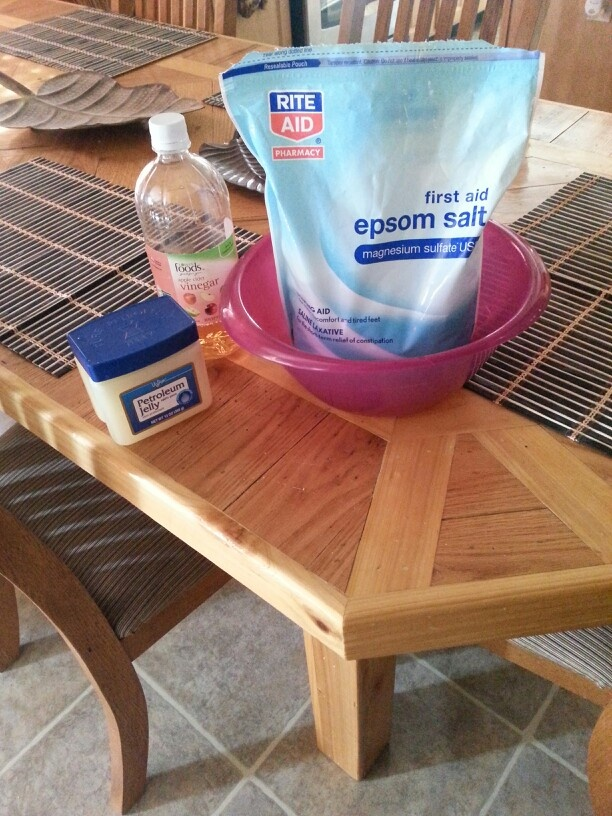 Soak feet in a bowl/tub with water, 1 c. Epsom salt, 1 c. vinegar for 15-30 minutes. Rinse clean. Rub feet with small amount of petroleum jelly and scrub with Epsom salt. Rinse with mild soap finish with lotion after feet are completely dry!