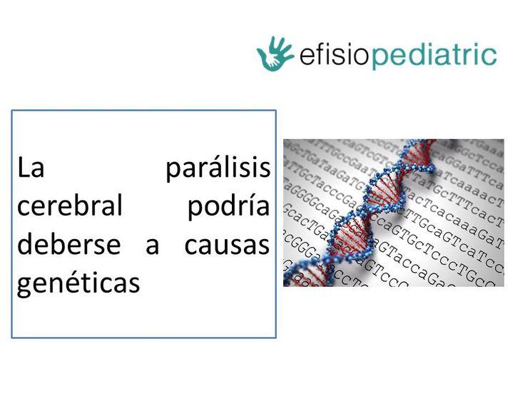 En este post explicamos la noticia sobre un estudio que apunta que la  parálisis cerebral  podría deberse a causas genéticas