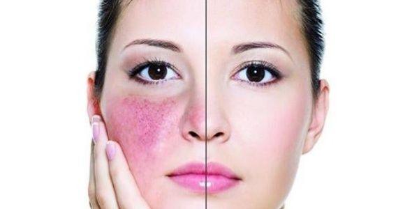 Cara Menyembuhkan Alergi Kulit Wajah - SEMBUH 3X LEBIH CEPAT, membantu redakan gatal, kemerahan, peradangan, infeksi, ruam dan menghilangkan sensasi panas / terbakar pada wajah. Cara ini AMPUH mengatasi alergi karena makanan, cuaca, kosmetik dan lainnya.