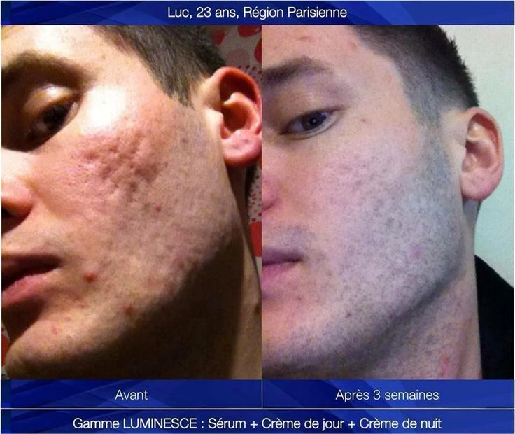 jeunesse-luminesce-cellular-rejuvenation-serum-672901-MLB20444430114_102015-F.jpg (960×809)