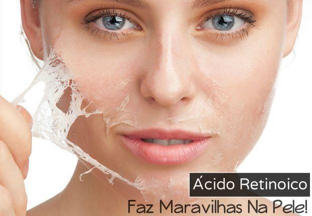 Ácido retinoico: faz maravilhas na pele, tira manchas e estrias! Aqui você encontra o jeito certo de usar ácido retinoico, as indicações e muito mais!