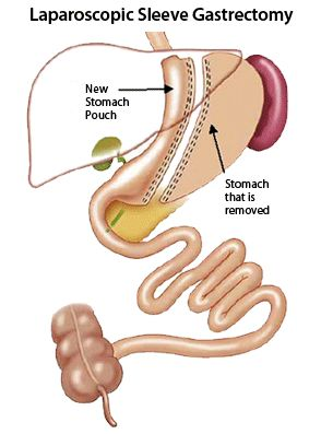 Gastric Bypass Surgery In West Palm Beach