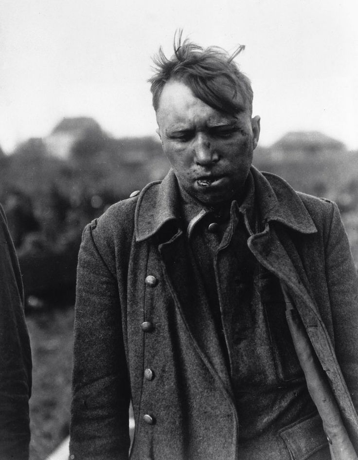 This is one of the ten Waffen-SS members accused by regular German army soldiers (who beat two of them, including the man seen here) of killing American prisoners of war at Malmedy, Belgium during the Battle of the Bulge (May 7, 1945). The Malmedy massacre was a war crime in which 84 captured Americans were murdered on December 17, 1944 by members of SS-Kampfgruppe Peiper. The massacre, plus others committed by the same unit, was prosecuted as part of the Dachau Trials of 1946.