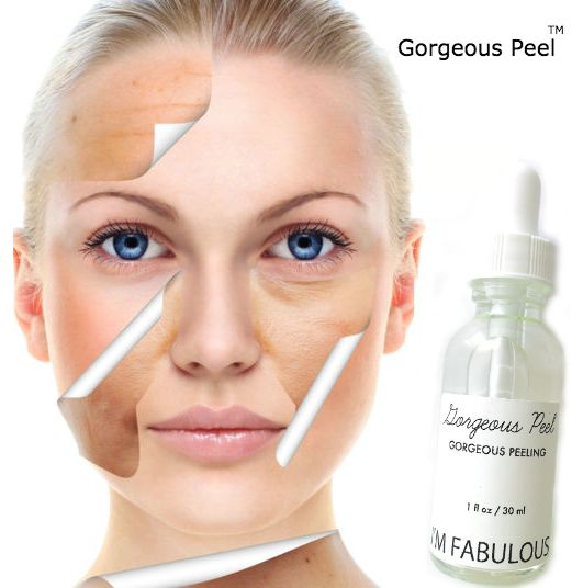 Gorgeous peel, NO downtime! Great for sun damage, dull skin, scarring and wrinkles.