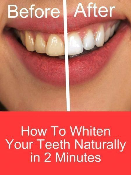 How To Whiten Your Teeth Naturally In 2 Minutes This Is A Remedy