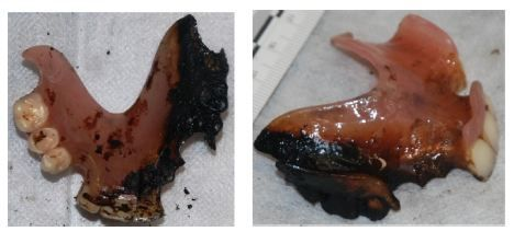 Figure 12 The burn damage on the denture on the external and internal surfaces.