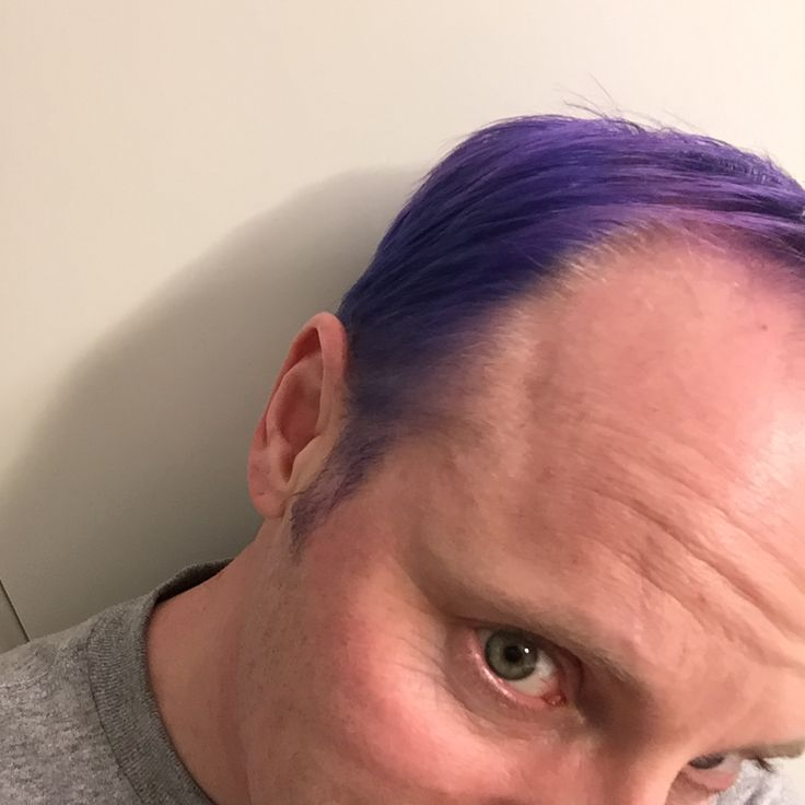 Created purple-blue with light highlights Dec. 2017 by bleaching to ash blonde (platinum) with Wella T18 then applying Manic Panic Shocking Blue for 2hr.