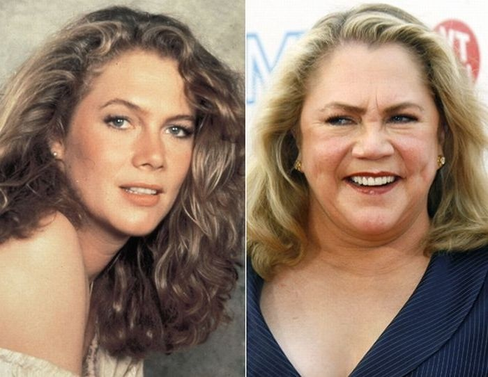 Kathleen Turner Now And Then Famous People Kathleen