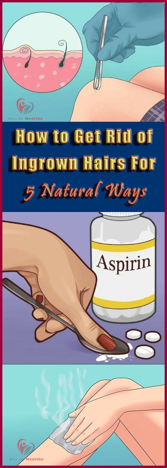 How to Get Rid of Ingrown Hairs for 5 Natural Ways #IngrownHairRemedies