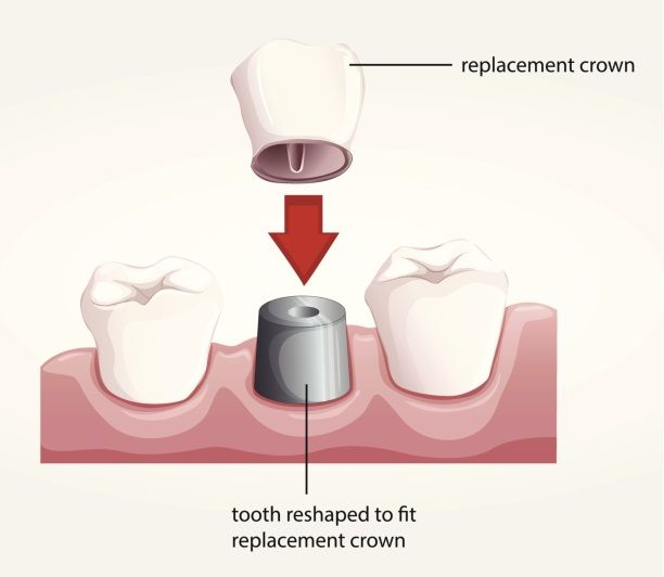 No one wants to visit a Dentist for sure. But when the moment comes for a visit everyone has to be sure of something unusual. No doubt procedures to fix a bad tooth engulfs a lot of agonies. But surely with the completion of the process, we won't hesitate to give a wide grin. Visit to know more about our Dental Crown Procedure -> http://bit.ly/2cSPYfE