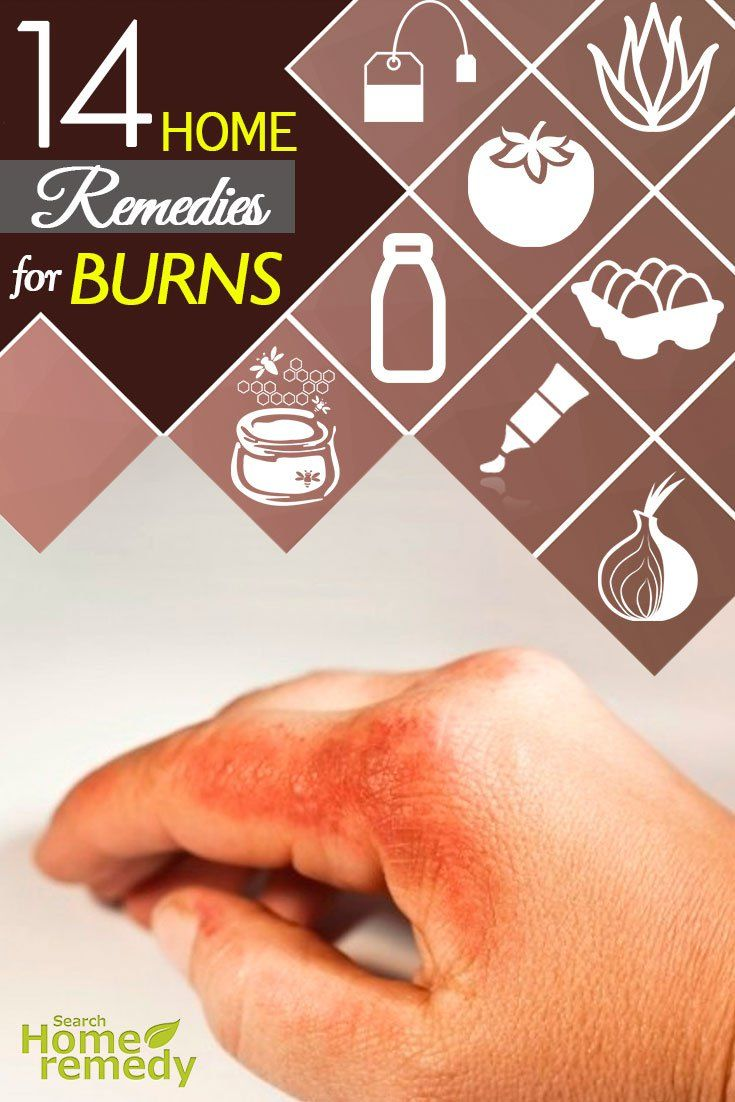 14-home-remedies-for-burns