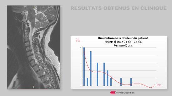 progres de traitement hernie discale cervicale