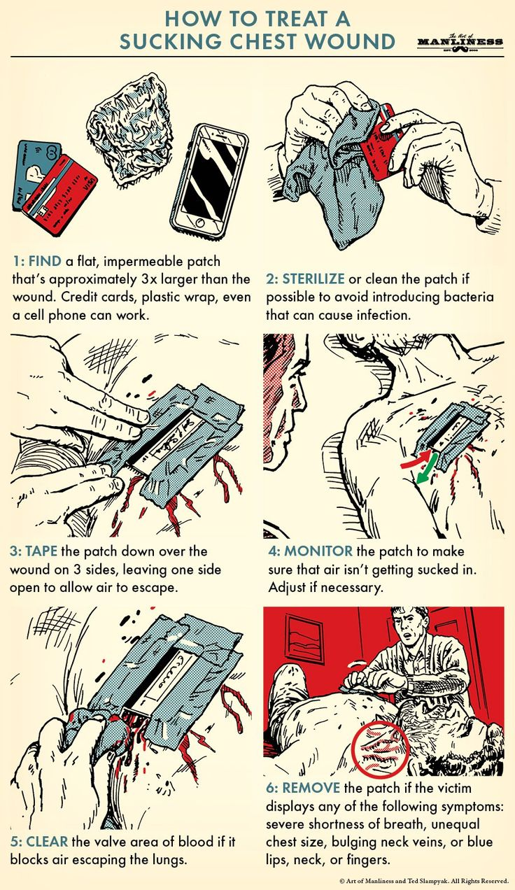 18 best how to advice images on pinterest art of manliness everything about this potentially life threatening injury is quite bad a sucking chest wound malvernweather Images