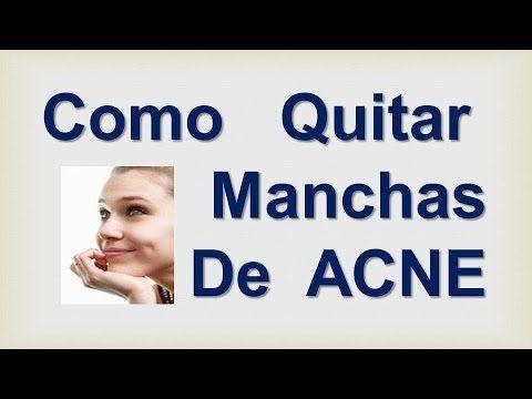 Como quitar manchas de acne en la cara como quitar - Como quitar la carcoma ...