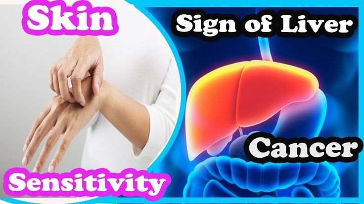 6 Common Symptoms Of Liver Cancer You Should not Ignore