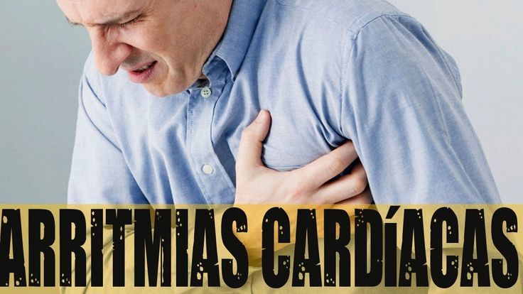 Arritmias cardíacas video