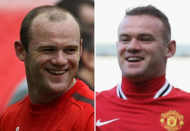 Wayne Rooney Hairline
