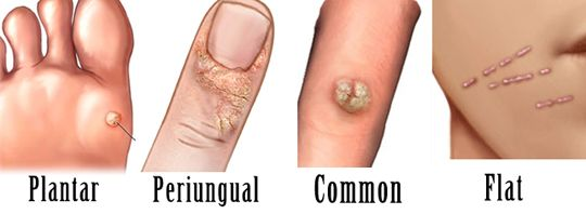 10 Ways to Get Rid of Warts Fast and Naturally | HowHunter