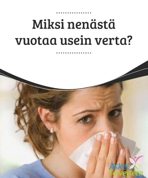Miksi nenästä vuotaa usein verta?  Nenän #verenvuoto voi johtua useasta syystä. Se saattaa liittyä nuhaan tai nenän kuivuuteen, mutta se voi myös viitata muihin, #vakavampiin#terveysongelmiin.  #Mielenkiintoistatietoa