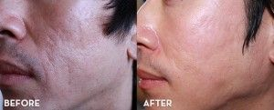 Mens Cleanser Guide for Smooth, Youthful Skin  Presented by Skincare-News.com - http://acnescartreatmentoptions.com/mens-cleanser-guide-for-smooth-youthful-skin-presented-by-skincare-news-com/