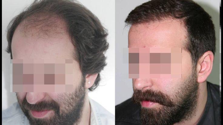 نتائج طبيعية بعد عملية زراعة الشعر بتقنية الفيو  #زراعة_الشعر #زراعة_الشعر_في_تركيا #تركيا #زراعة_الحاجب   #زراعة_اللحية   #عملية_زراعة_الشع #فيو #الخليج #دبي #تساقط_الشعر #المانيا #فرنسا   #ينمارك #العراق #السعودية