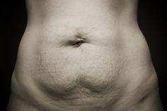 Après un accouchement ou un régime un peu trop efficace, il n'est pas rare de voir la peau du ventre se relâcher et devenir flasque et molle. Difficile après cela de retrouver sa belle peau tendre et ferme, malgré les tonnes de crème fermeté à prix exorbitant dont on se tartine chaque matin. Tous