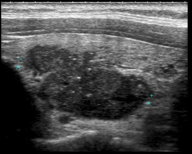 WK 1 THYROID Papillary thyroid cancer | Radiology Reference Article | Radiopaedia.org Sonographic appearance of papillary thyroid cancer Presentation is usually with a solitary palpable thyroid mass.