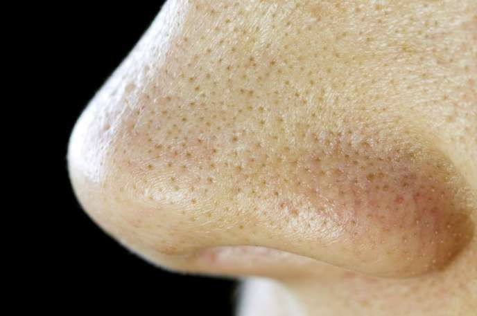 8 Facts About Blackheads That You Should Know - Answers.com